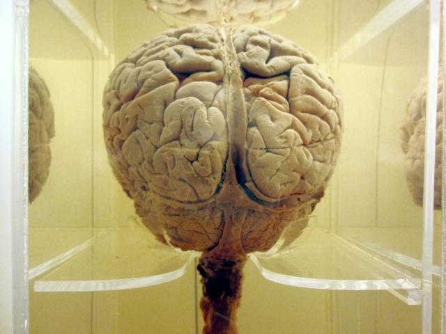 Brain (2)